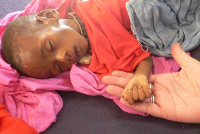 Medische hulp voor uitgedroogde kinderen