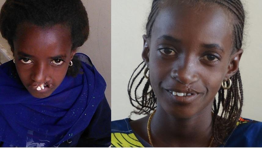 strong girl - sterke meid - voor en na operatie
