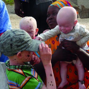Albino kinderen